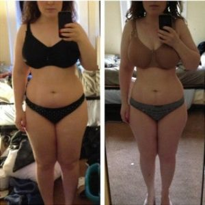 freezefat.org-before-and-after-cryolipolysis-treatment-323x324-1-300x300
